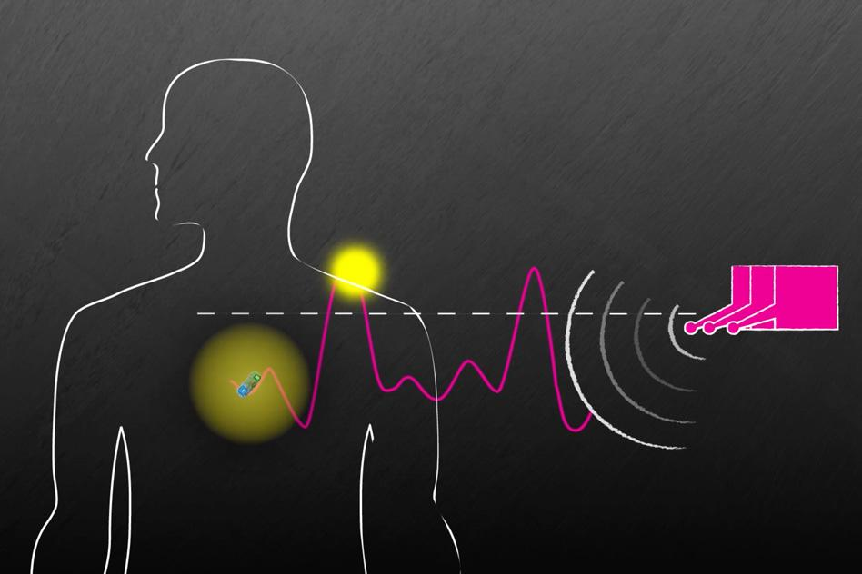 Devices as deep as 10 cm (3.9 in) inside a body can be effectively powered from a distance of 1 m (3.2 ft)