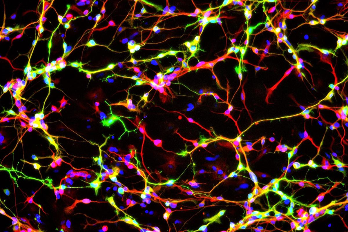The researchers were able to create the dopamine neurons (pictured) more efficiently than ever before
