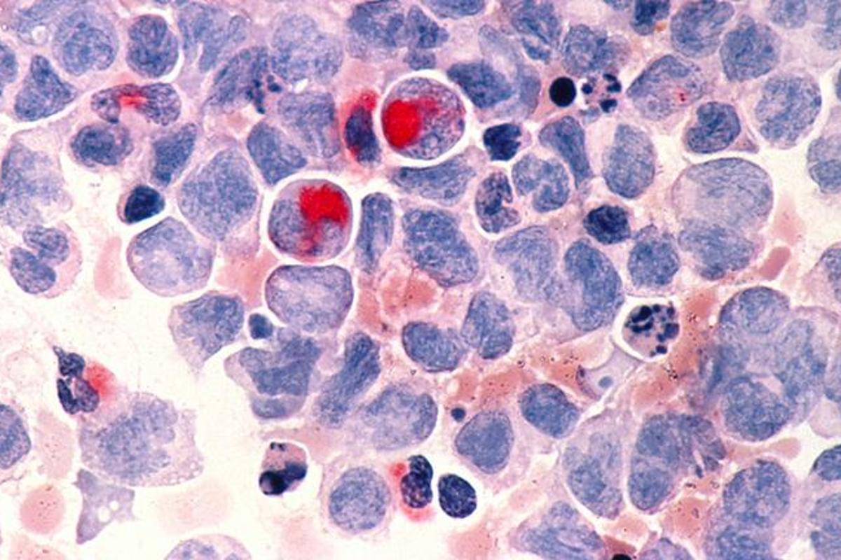 A microscope image of human cells with acute myeloid leukemia (AML)