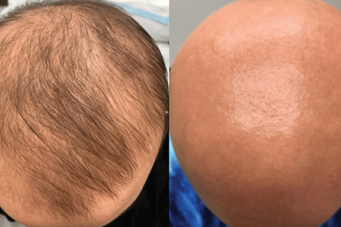 New eczema drug unexpectedly restores hair in bald alopecia
