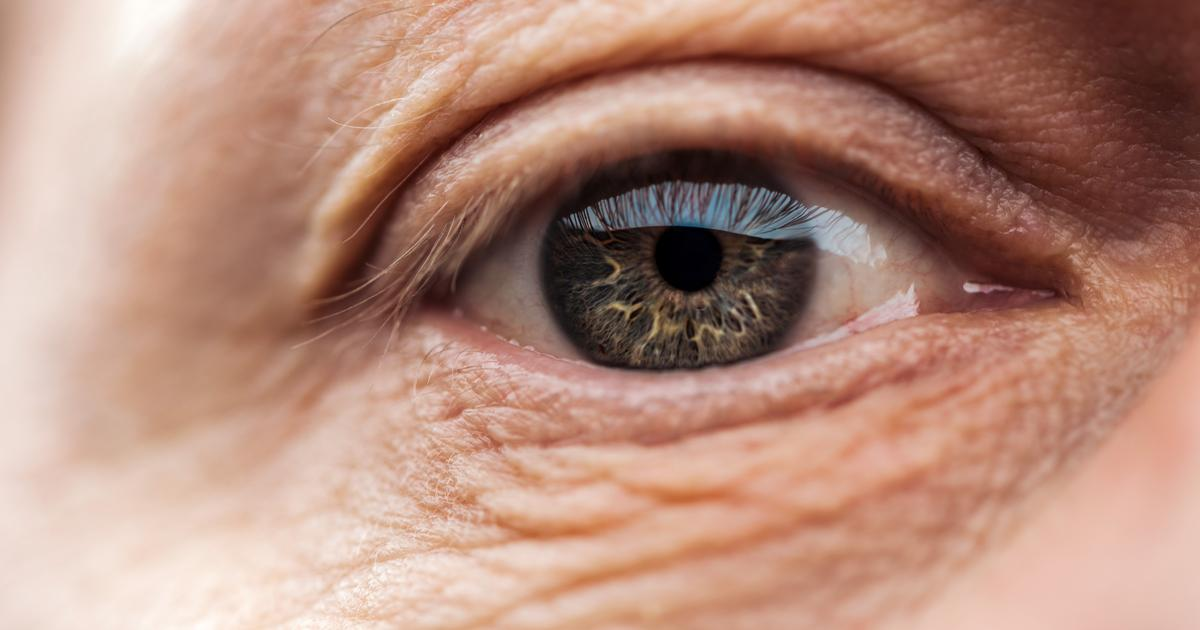 Important finding may help halt age-related macular degeneration