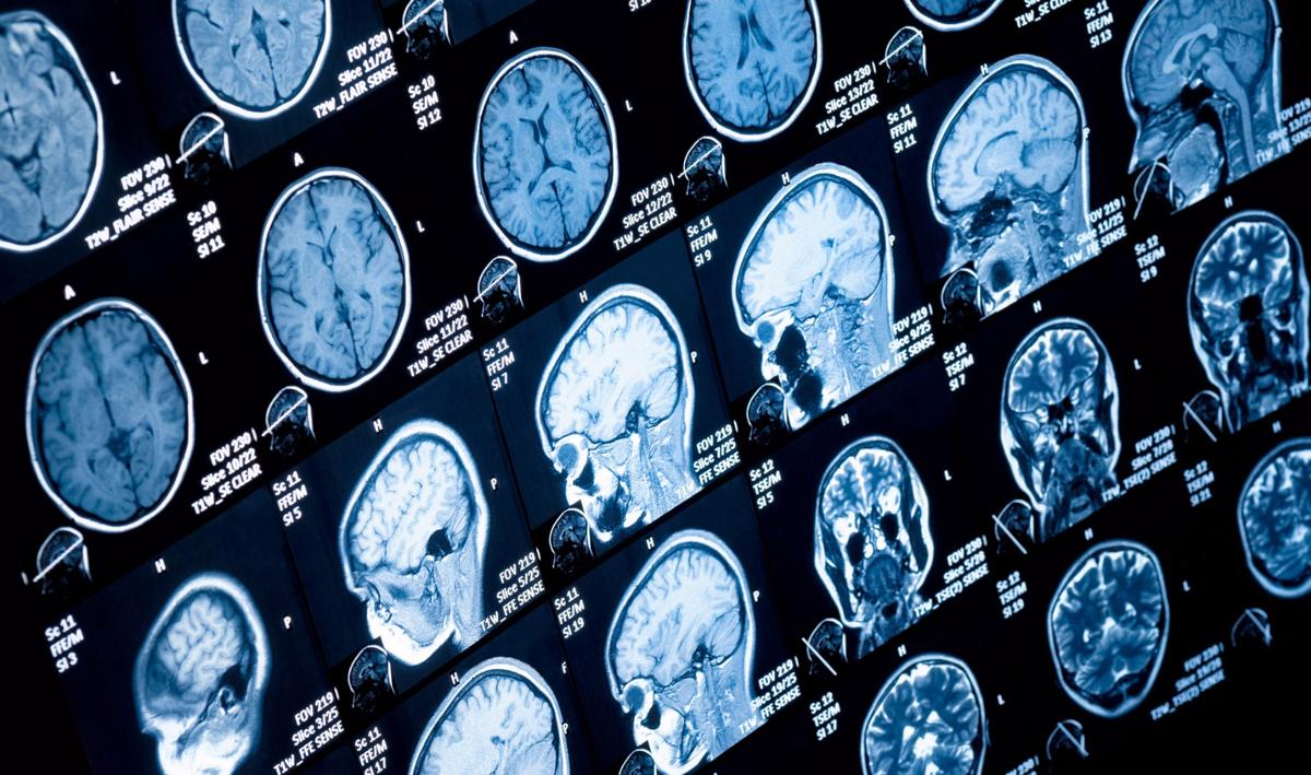 Scientists at Newcastle University discovered that a common form of fatal brain tumorfeeds off of its fats by slowing its growth in micewith a drug that slows the production of fatty acids.