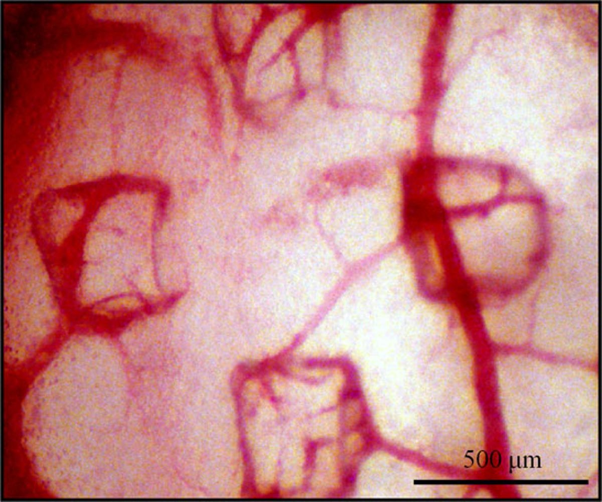The growth of these blood vessels was caused and directed by the microvascular stamp