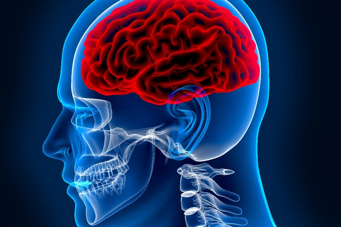 To check if someone is concussed, seeing how their brain responds to sound may be the way to go