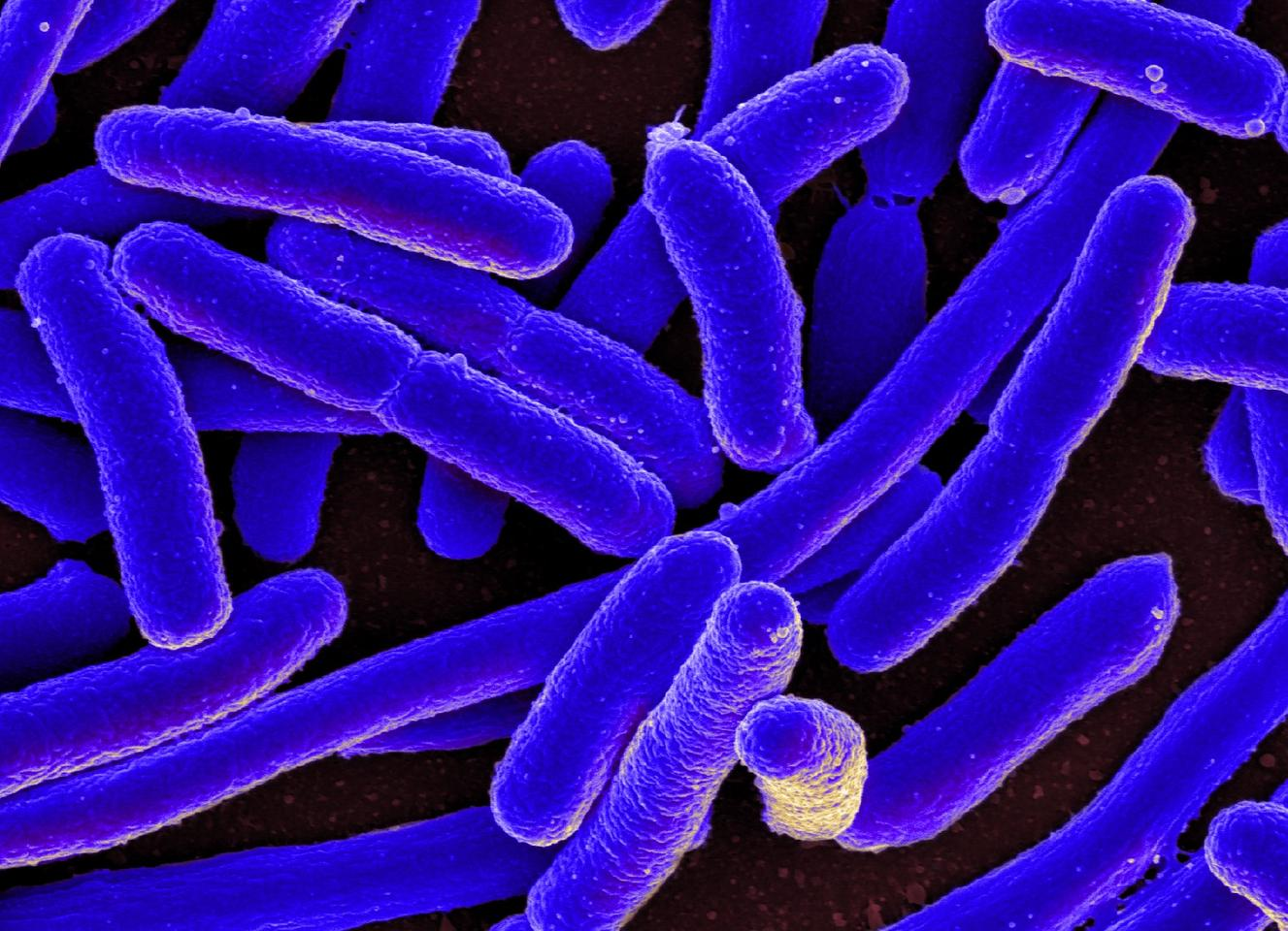 In a proof-of-concept study, scientists at the University of Granada have shown how an ancestral protein dating to as far back as four billion years can protect E. coli from a bacteria-infecting virus