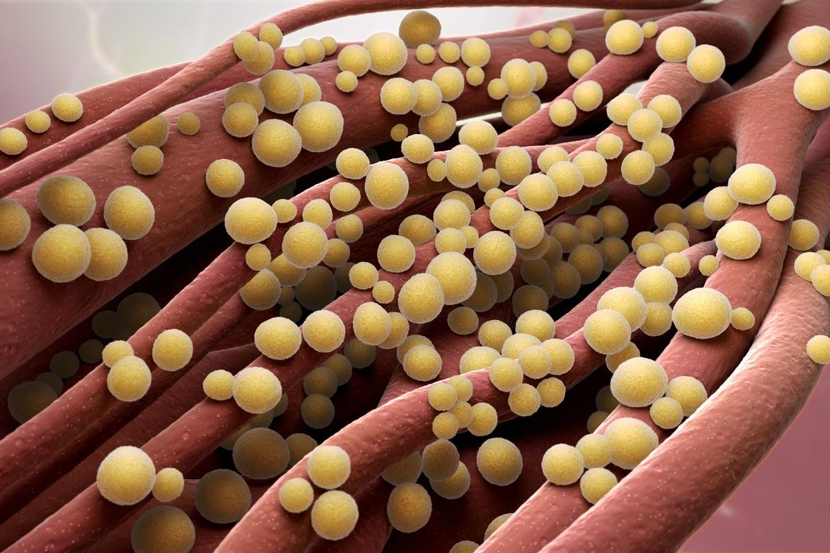 "Scientists studying the genes of superbugs have discovered ""unexpected chinks in the armor"""