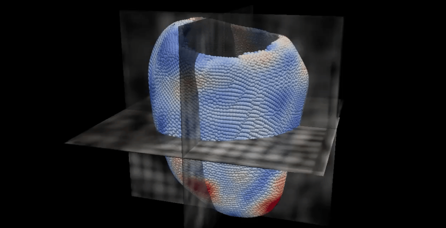 Using this 3D image of the patient's heart the system can replicate how the organ contracts during each individual beat