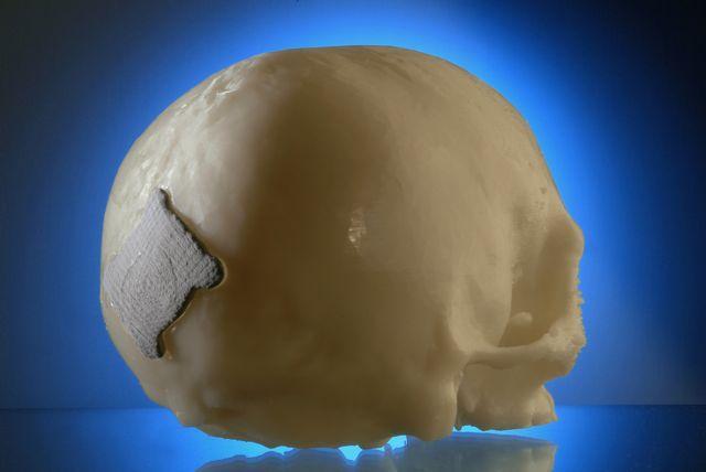 A Resobone patch on a model skull