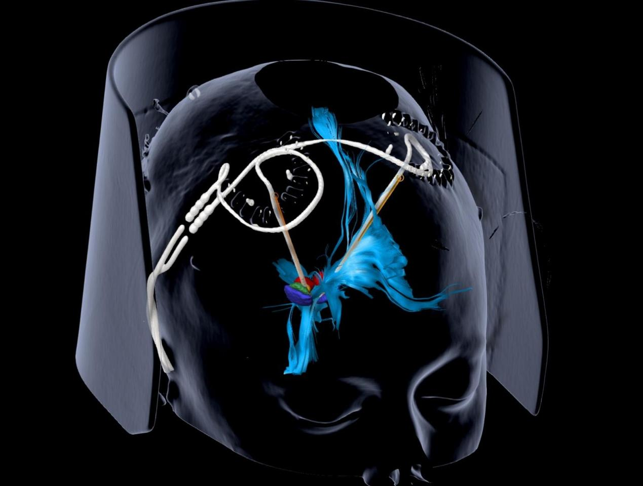 Researchers implanted electrodes into the brain's medial forebrain bundle, seen in blue, as a way of treating depression, and found some promising results