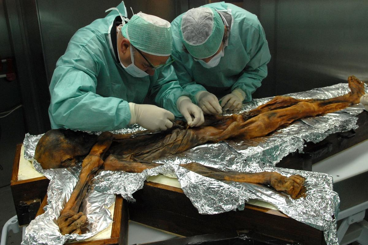 It may look like an alien autopsy, but here researchers examine the stomach contents of the 5,300-year old Iceman, Ötzi