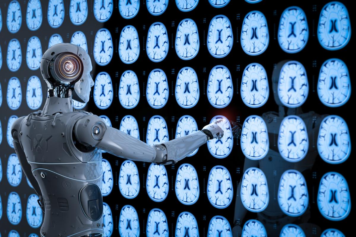 Artificial Intelligence platforms look set to change the face of medical imaging analysis across the UK's National Health Service (NHS