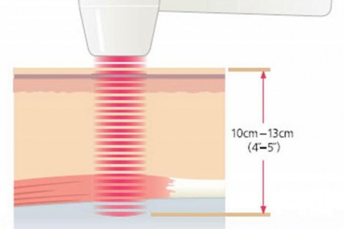 Multi Radiance Medical's laser delivers a pulse at billionths of a second