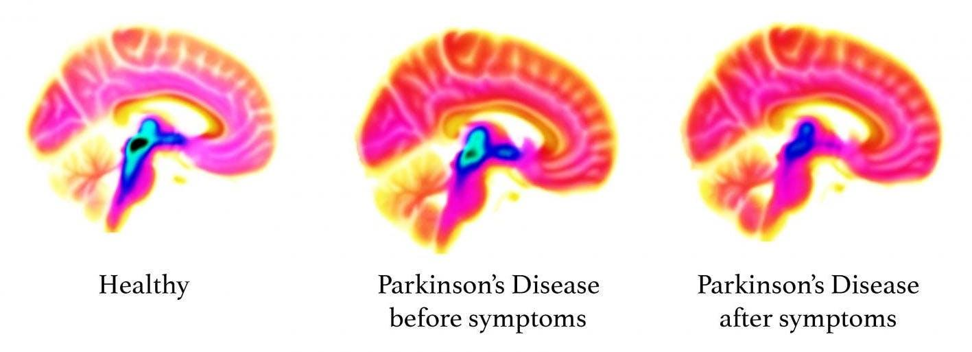 Brain imaging showing early signs of Parkinson's in pre-symptomatic patients