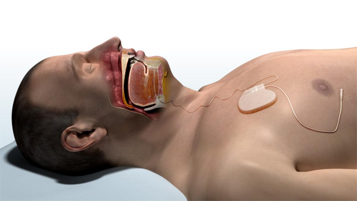 A rendering of a patient with the Inspire system installed