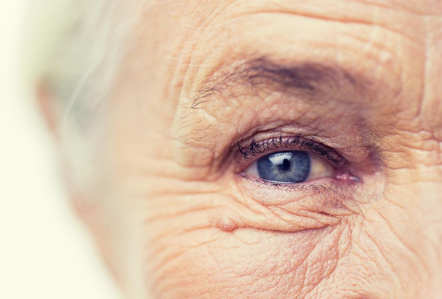 Age-related macular degeneration, diabetic retinopathy and glaucomawere all associated with a higher risk of developing Alzheimer's disease in a new study
