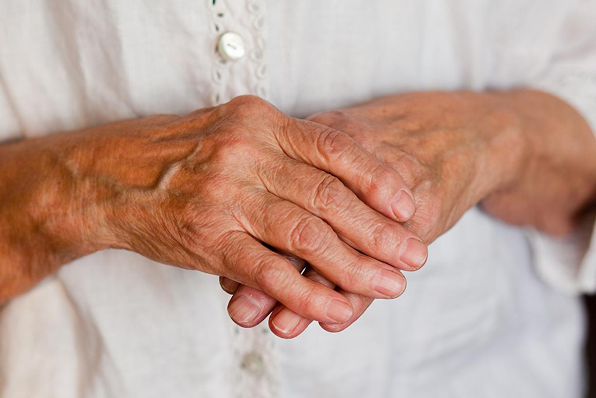 U.S. researchers are developing a new technique to treat autoimmune diseases like rheumatoid arthritis (Photo: Shutterstock)