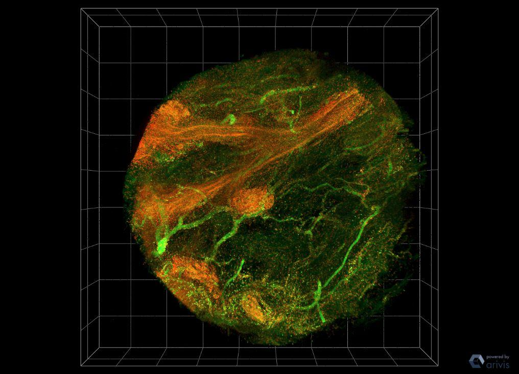 The cell nuclei are pictured here in red and the background structures and fibers are green in a 3D breast cancer biopsy (0.06 inches in diameter)