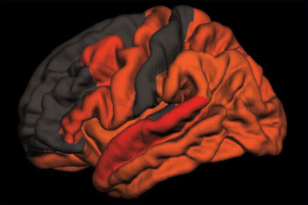 The red and orange shades illustrate the areas in the brain that display higher levels of toxic proteins aggregating in relation to reduced amounts of slow-wave sleep