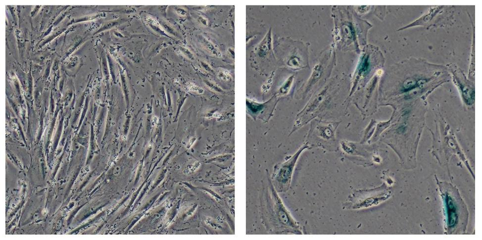 The image on the left shows normal human cells, while the image on the right depicts cells that show signs of aging and that have fallen victim to heterochromatin disorganization (Image: Salk Institute for Biological Studies)