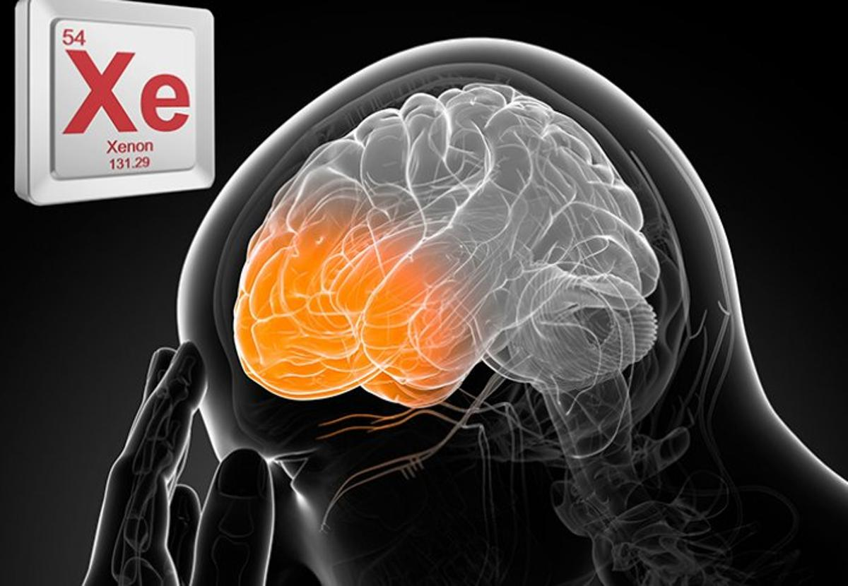The anesthetic gas, if administered within three hours of a head injury, could help prevent long-term brain damage