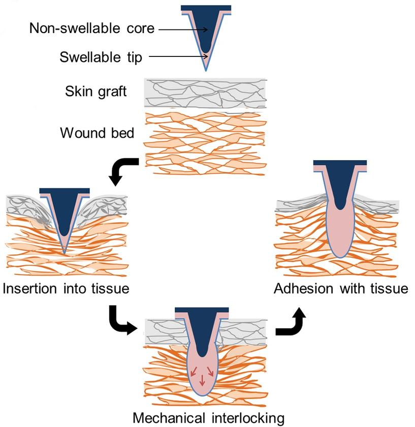 The microneedle patches reportedly produce over three times the adhesion strength of sutures or surgical staples (Image: Karp lab)