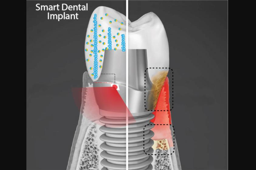 A cut-away diagram of the Smart Dental Implant (SDI), which does exist as a physical proof-of-concept prototype