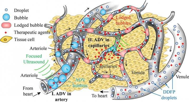 A diagram showing how gas embolotherapy works to kill tumors