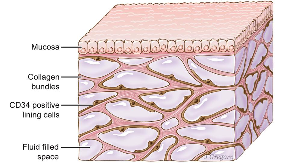 Seen beneath the top layer of the skin, this is an artist impression ofthe interstitium(Credit:Illustration by Jill Gregory. Printed with permission from Mount Sinai Health System, licensed under CC-BY-ND)