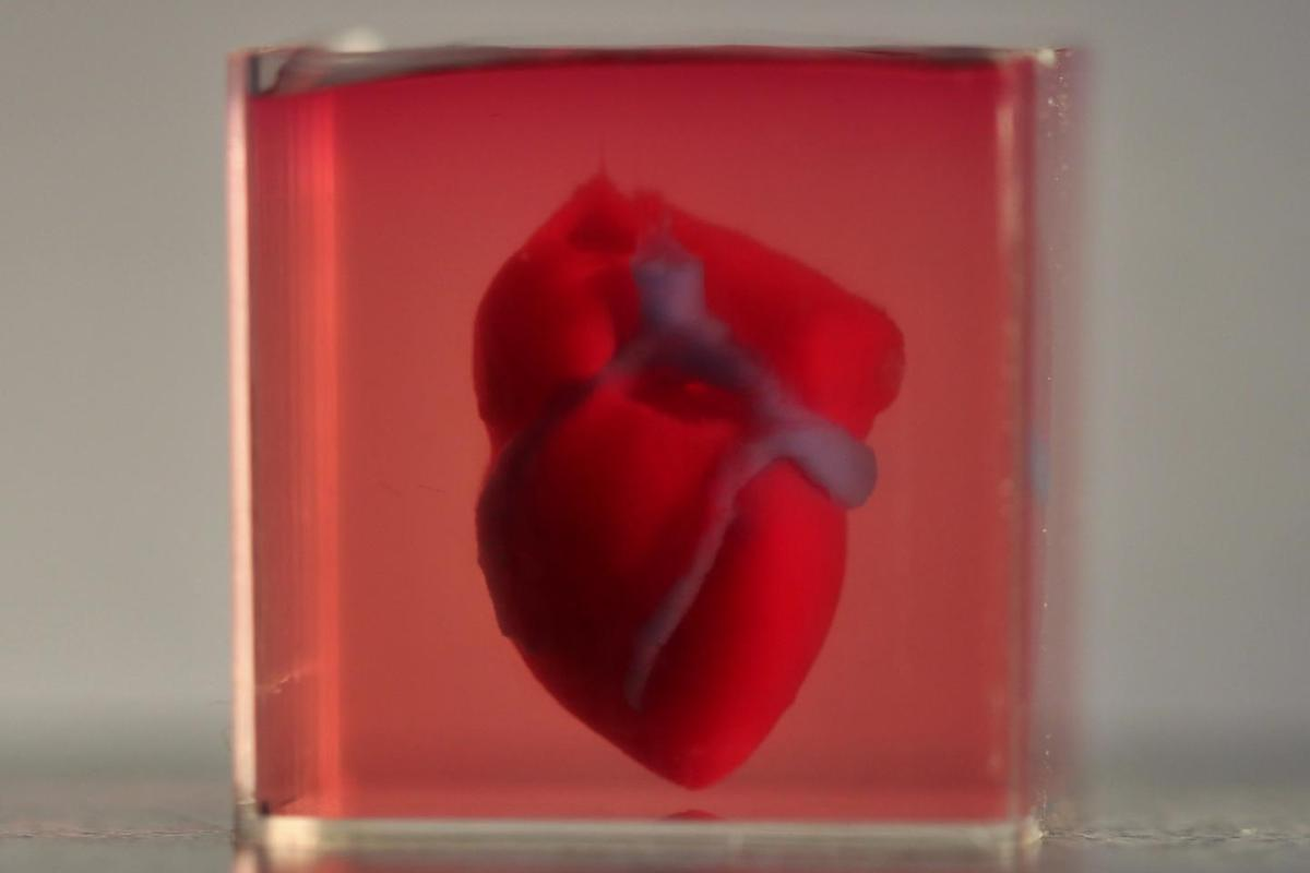 The bioprinted mini human heart in its supporting medium, which can later be removed