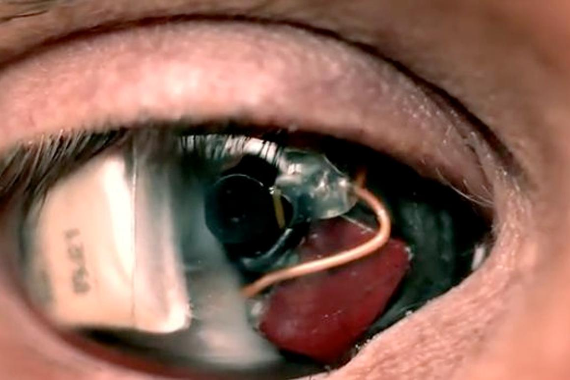Film-maker Rob Spence has announced that his 'Camera Eye' is now fully functioning (Image: Rob Spence)