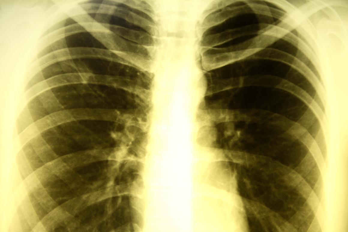 A team of international researchers has turned to stem cells in a quest to find an a more effective treatment for patients with resistant tuberculosis (Image: Shutterstock)