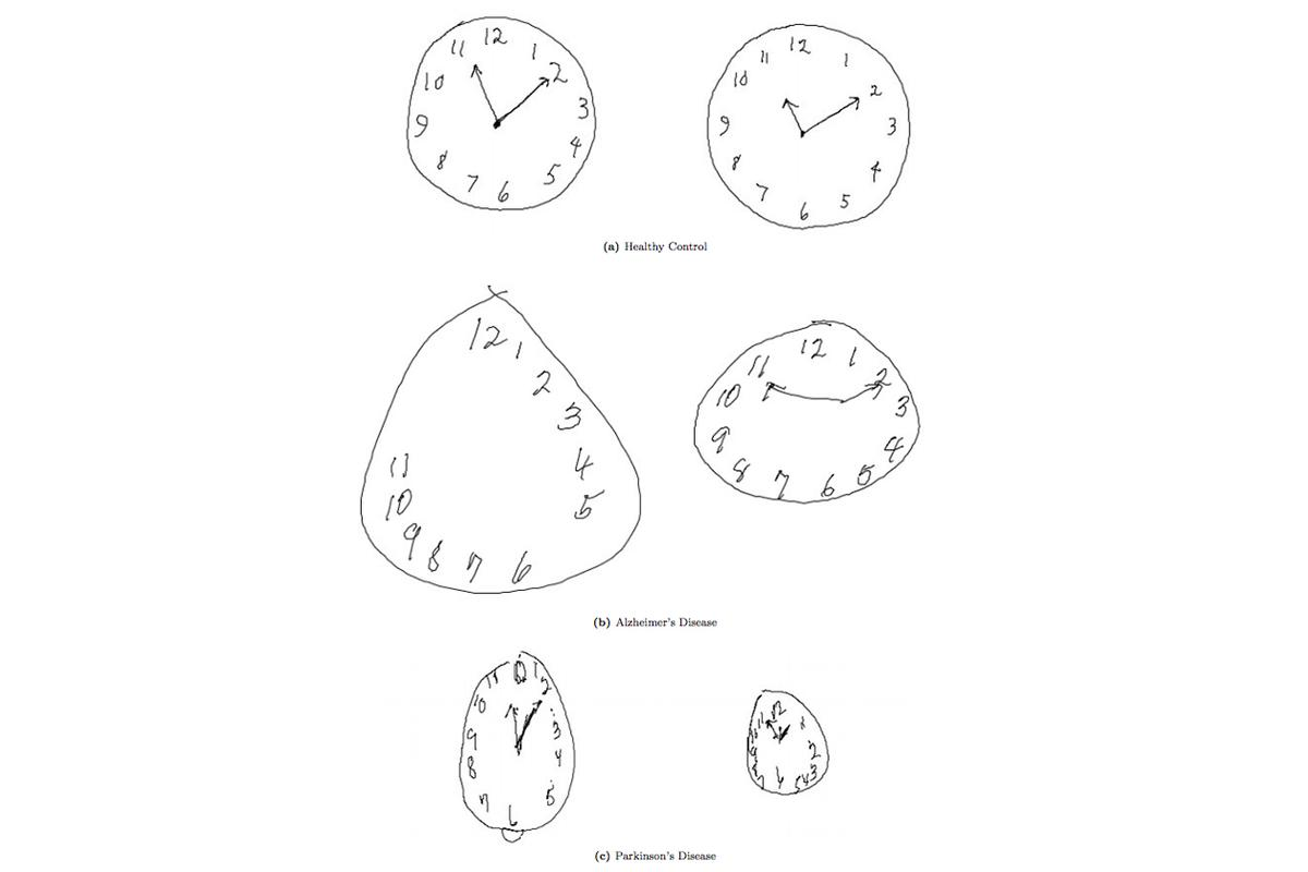 MIT researchers have updated the Clock Drawing Test (CDT) to the digital age