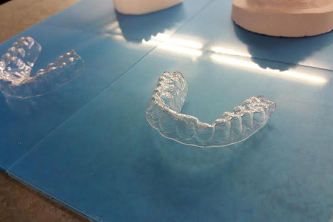 After making the molds, Dudley used a vacuum forming machine and dental plastic to create his pathway to the perfect smile