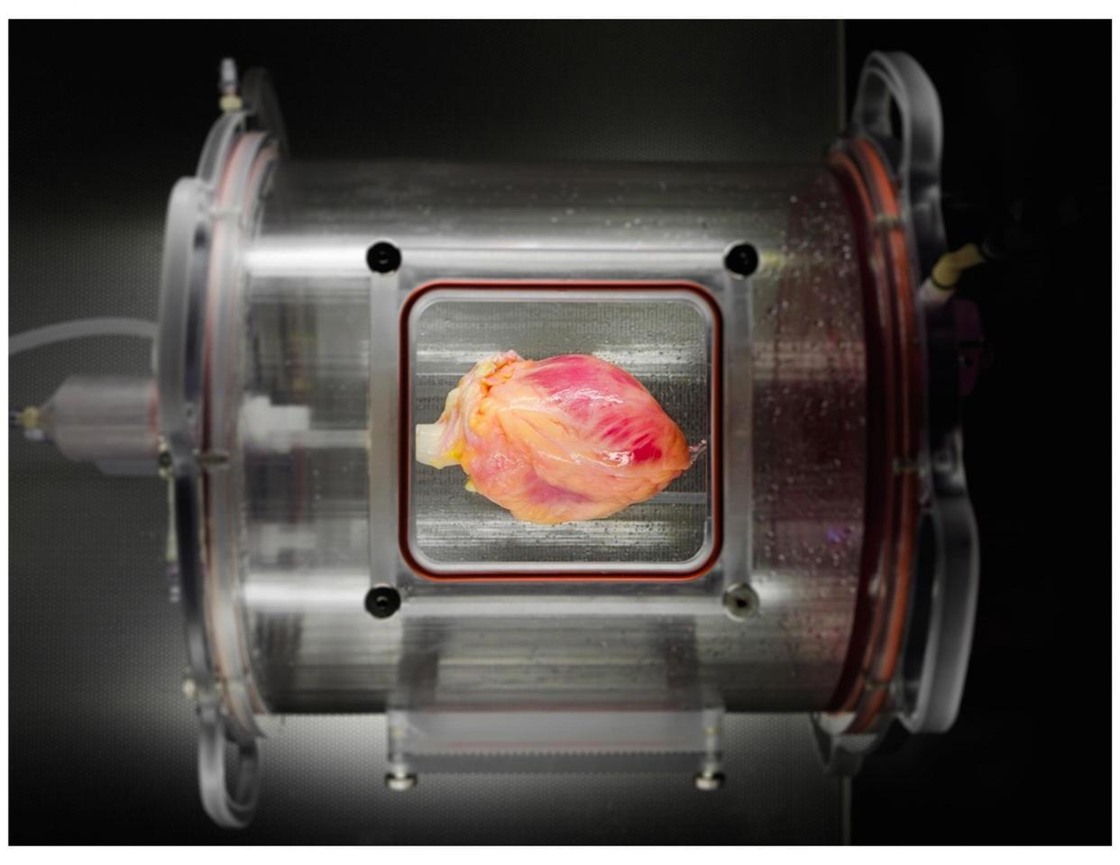 A partially recellularized human whole-heart cardiac scaffold, reseeded with human cardiomyocytes derived from induced pluripotent stem cells, being cultured in a bioreactor