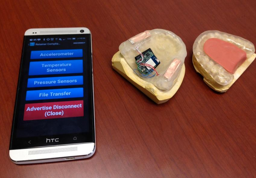 The prototype bruxism-detecting mouth guard, and its app