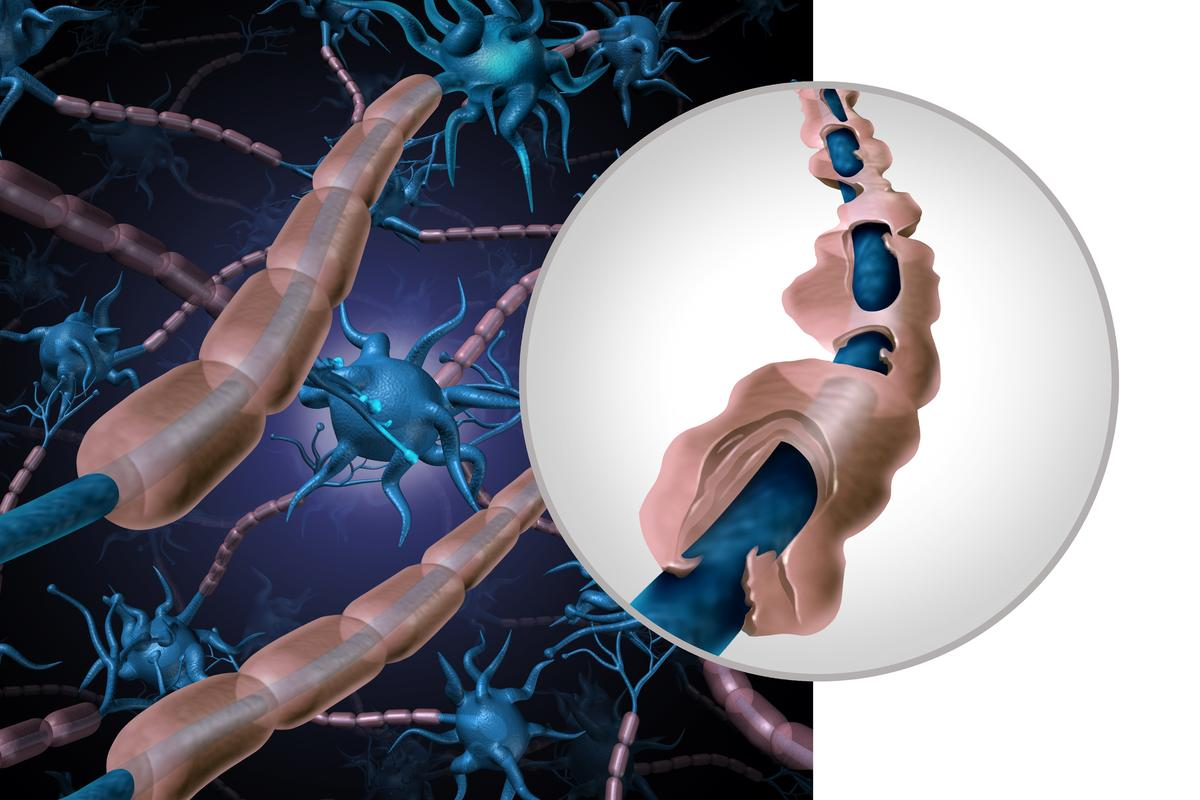 Multiple sclerosis (MS) destroys the protective myelin sheath that insulates nerves – and a new drug may help repair it