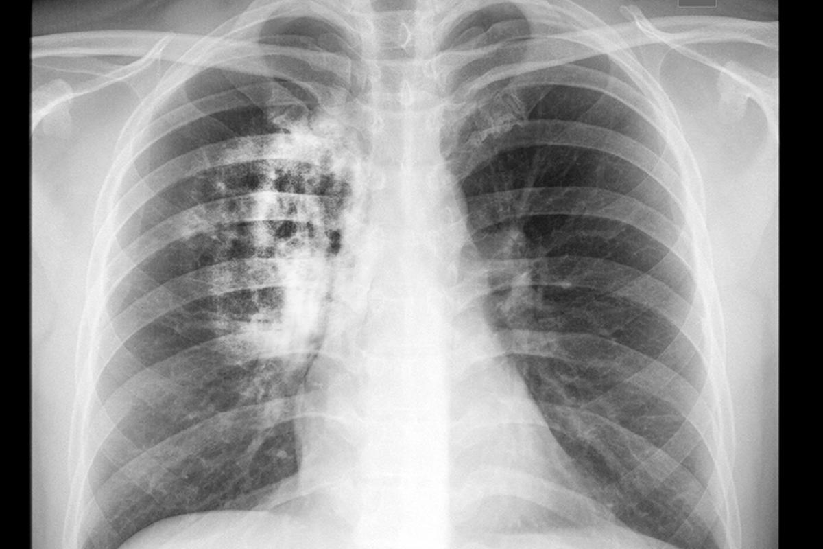Findings that a variant of the CIZ1 protein is present in lung cancers could lead to the development of a blood test for the disease (Image: Shutterstock)