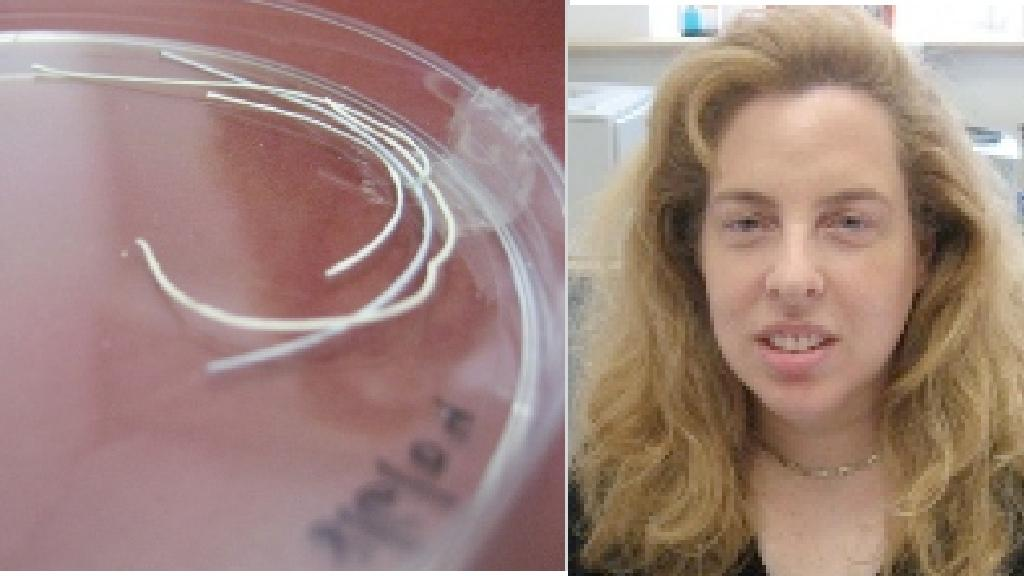 Prof Meital Zilberman and drug-releasing fibers that can be used in dissolving wound dressings that could help burns victims