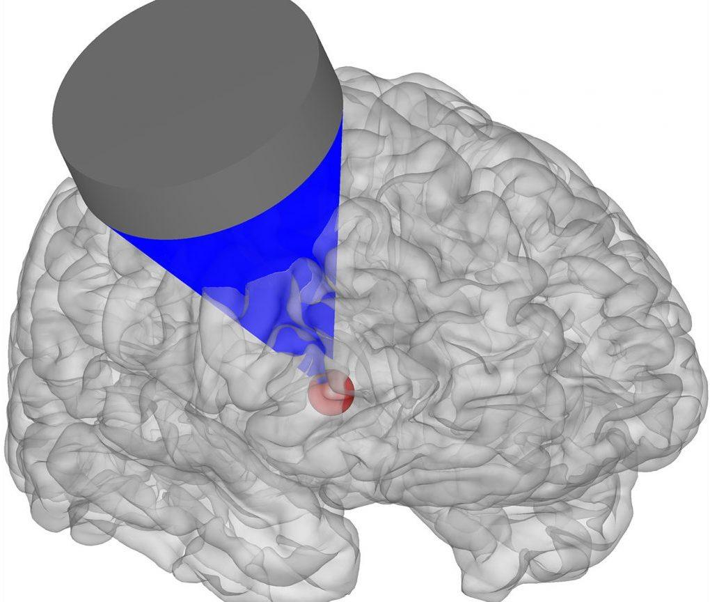 Targeting a specific brain region with ultrasound pulses can affect the behavior of monkeys