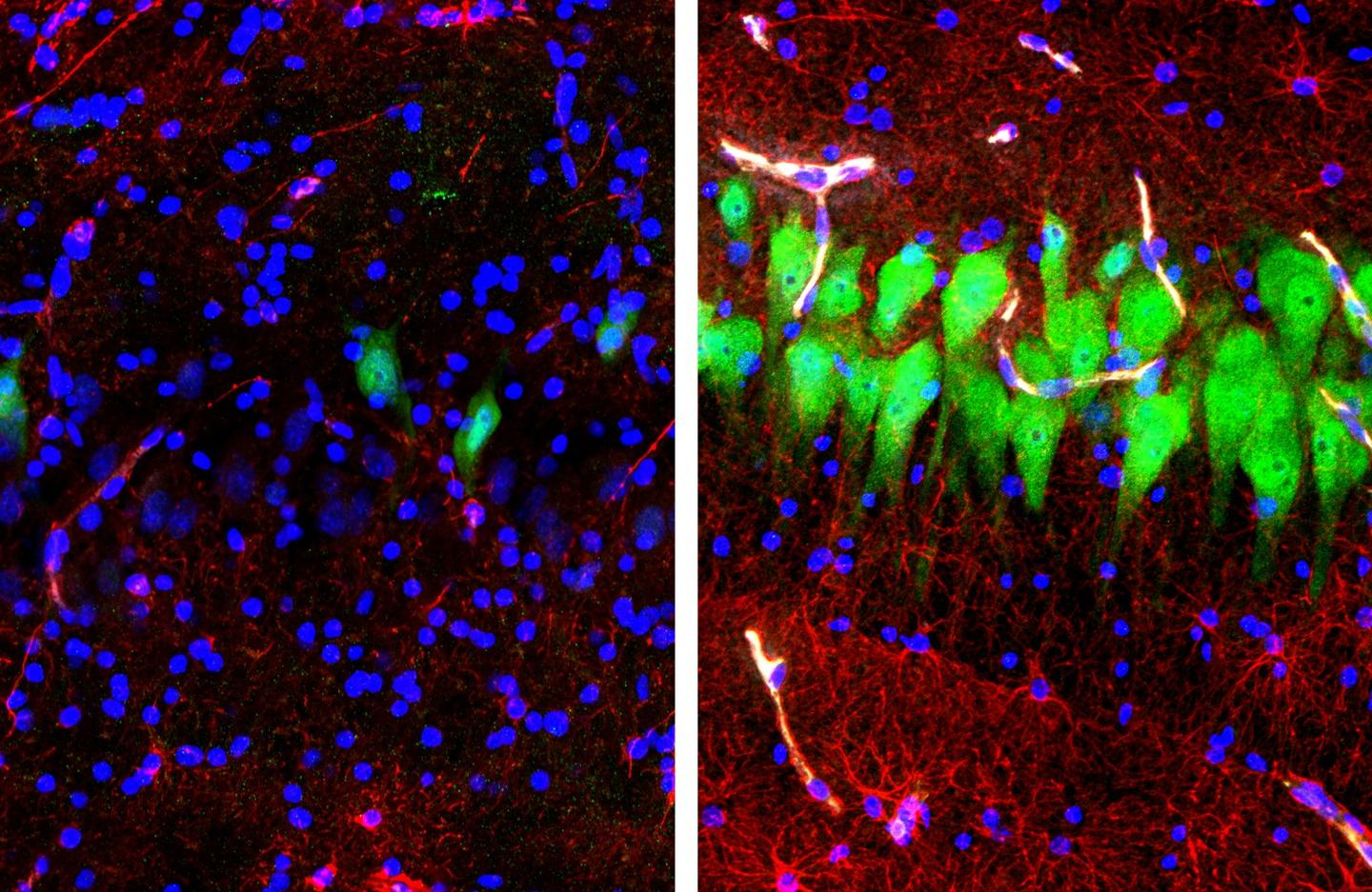 Neurons (green), astrocytes (red), and cell nuclei (blue), as seen in the hippocampal region of the pig brain. The image on the left is a control brain, which was left untreated for 10 hours after death. The image on the right is from a brain treated with the BrainEx system, reducing cell death and even restoring some brain functions for 10 hours after death