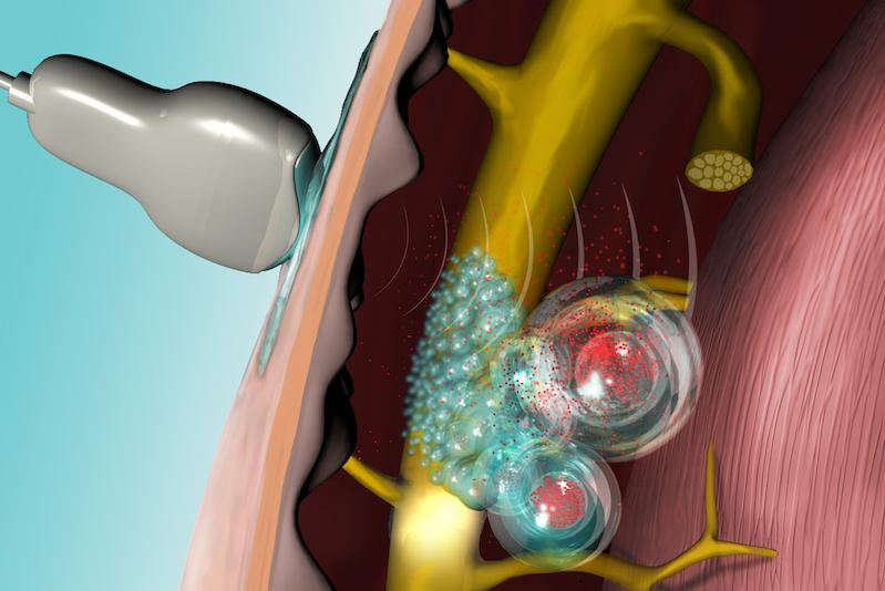An illustration showing the ultrasound device and the injected liposomes