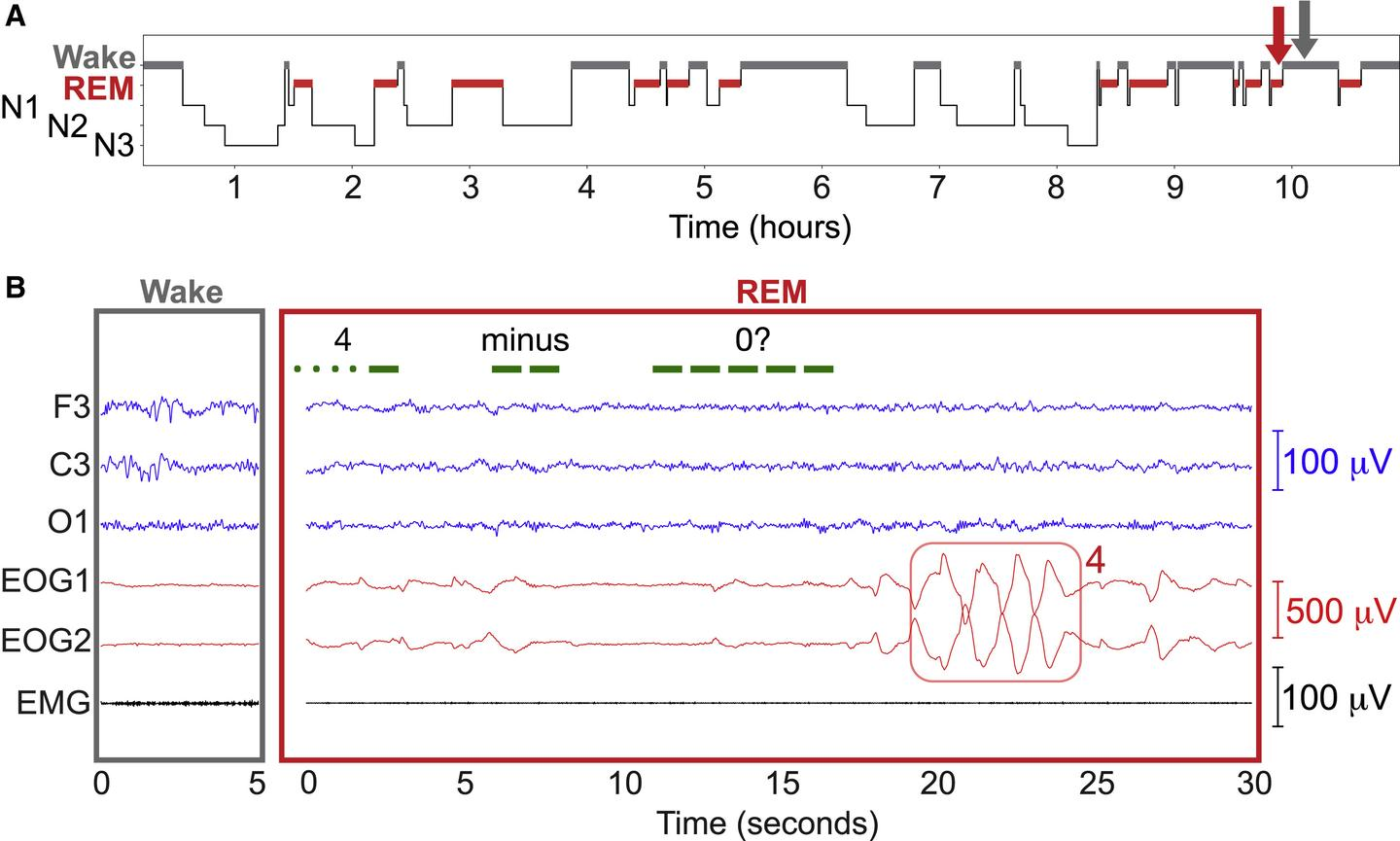 A german patient responds with eye movements to a math question in morse code during REM sleep