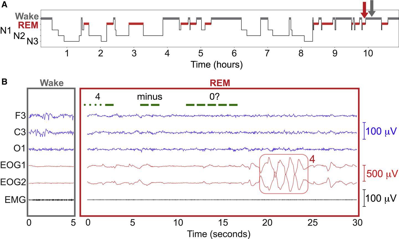 독일 환자가 REM 수면 중에 모스 부호의 수학 질문에 눈의 움직임으로 반응