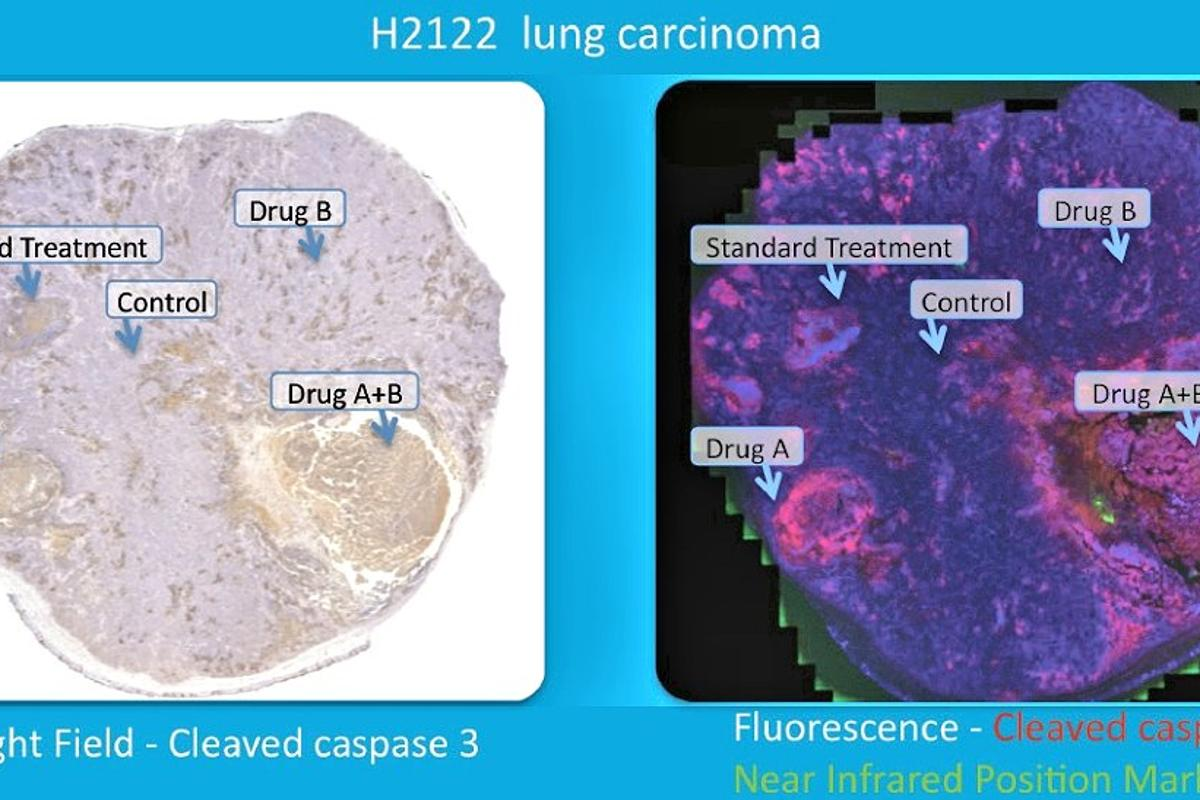 The results of a test of several chemotherapy drugs on a lung cancer tumor (Photo: Presage Biosciences)