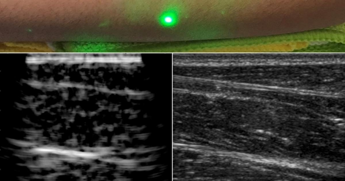 MIT reveals first ever laser ultrasound pictures of a human body