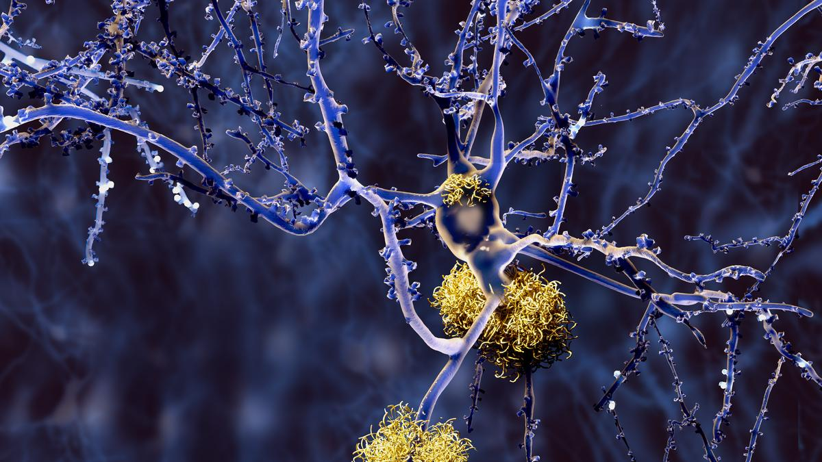 Slow blood vessel pulses could massage away Alzheimer's brain plaques