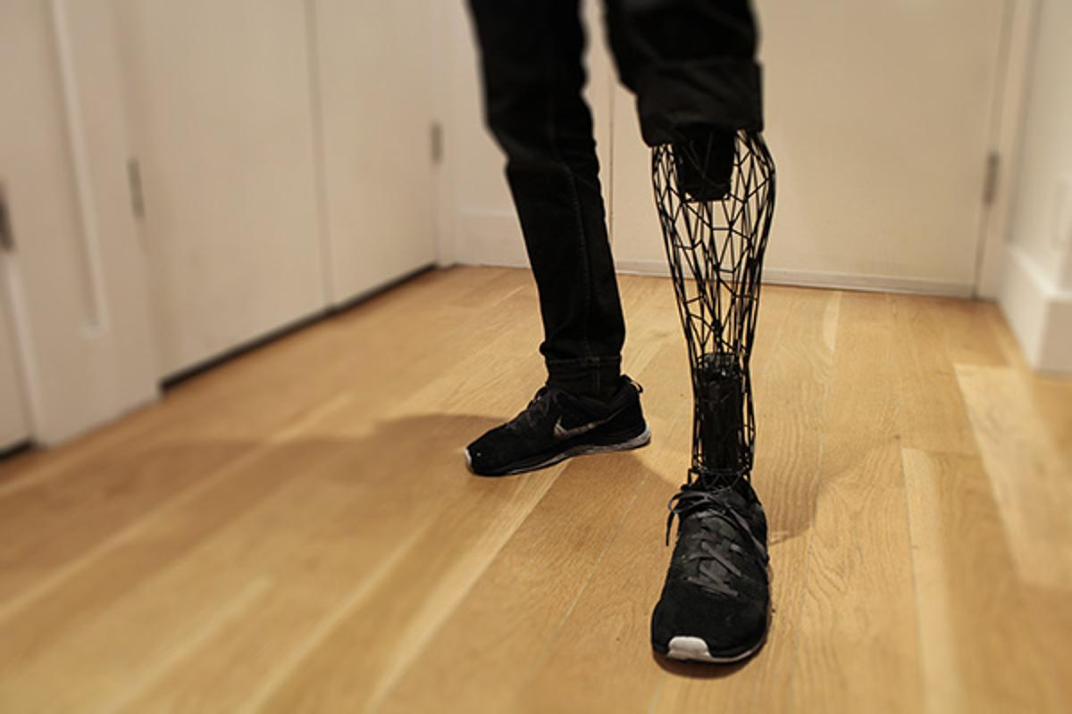 Rather than have a robotic feel, the Exo adds a more lifelike dimension to prosthetics (Photo: Will Root)
