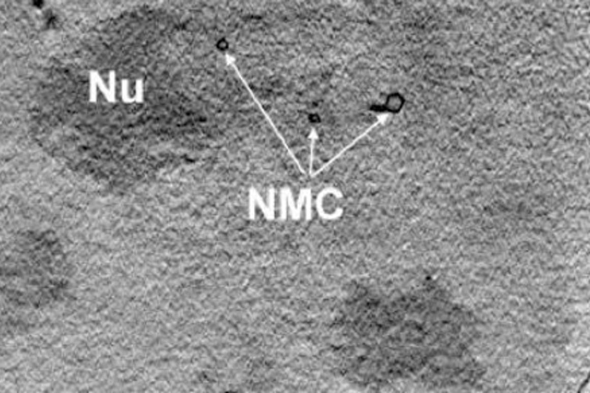 An image of the nucleus of a mouse adenocarcinoma cell showing the nucleolus and the membrane channels, taken via X-ray nanotomography (Photo: HZB)