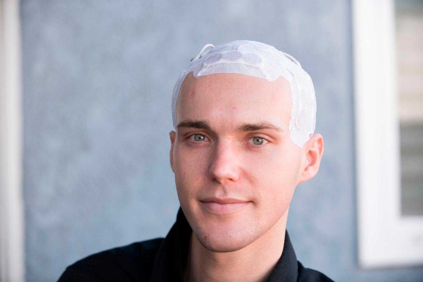 Patient Michael Davies wearing an Optune device