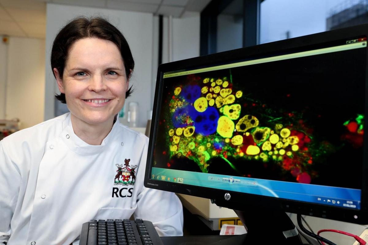 The Royal College of Surgeons in Ireland's Prof. Sally-Ann Cryan, co-lead scientist on the study
